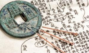 An ancient Chinese anatomy text and acupuncture needles.   Source: Yu Lan / Adobe Stock