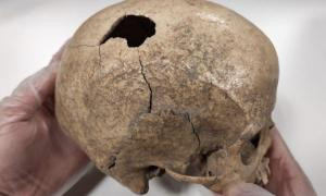 Analysis of the Cova Foradada Skull has revealed the story of the ancient incident. Source: Rovira i Virgili University (URV)