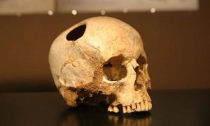 Evidence Emerges of Cranial Surgery in China Dating Back More than 3,500 Years