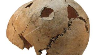 This skull from a teen boy, found at the Croatian massacre site, clearly shows blunt force injuries in two locations.