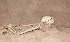 Skeleton with a hole in the skull.  Source: wellphoto/Shutterstock.com via The Conversation