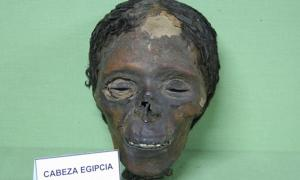 Ancient Egyptian Mummy Head Shows Woman Had Skin Condition Due to Beauty Practice