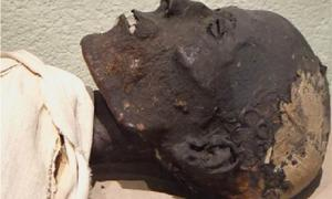 Researchers analyzed embalming material from the neck of this ancient Egyptian mummy, to understand Egyptian skin and mummification.            Source: Frédérique Vincent, ethnographic conservator / ACS