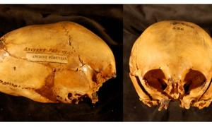 Elongated Skulls in utero - Morton Collection