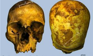 Fatal wounds to the front and back of the skull thought to be caused by axe blows.