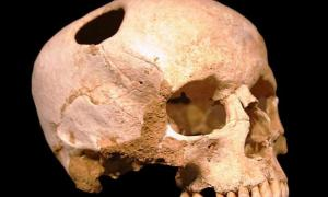 Representational image showing trepanation. A trepanated skull of a girl from the Neolithic period (3500 BC); the patient survived. Natural History Museum, Lausanne, Switzerland.