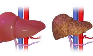 Normal liver on the left, liver with cirrhosis on the right.