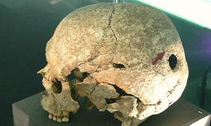 Ritually Motivated Traditions May Be Behind Holes Drilled into Skulls in Prehistoric Russia