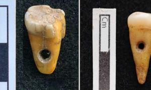 The two drilled 8,500-year-old human teeth found at Çatalhöyük in Turkey. Source: Scott D. Haddow / University of Copenhagen