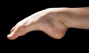 Image of human foot demonstrating the arch.          Source: Alessandro Grandini