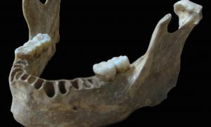 The Oase 1 jawbone from a 40,000-year-old modern human