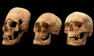 Bavarian skulls on the left and in the middle show signs of deformation; the one on the right is not deformed.
