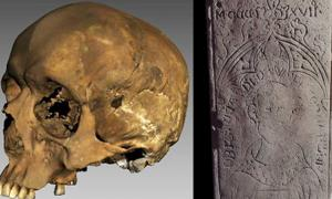 The recently unearthed medieval priest's skull and coffin lid.