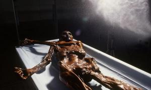 Conservation of Ötzi, the Iceman.