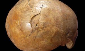 Right lateral view of the Cioclovina calvaria exhibiting a large depressed fracture.      Source: Kranoti et al / Plos One