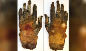 Photograph of human hand that was imaged shows palmar (left) and dorsal (right) views.