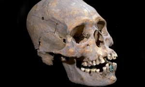 The elongated skull with stone encrusted teeth found in Teotihuacan, Mexico.
