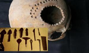 """Main: An ancient skull found in Peru with evidence of surgical intervention. Credit: Danielle Kurin. Inset: 4,000-year-old """"scalpels"""""""