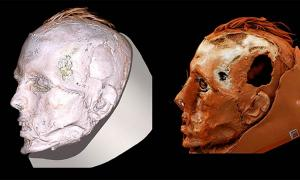 A new CT scan of the Tashtyk death mask has uncovered the face of the ancient Tashtyk man, revealing he had a scar on his face from a wound stitched up after his death. Source: ©The State Hermitage Museum / The Siberian Times