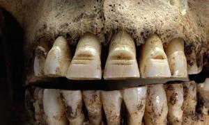 This Swedish Viking had filed front teeth.