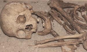 Ancient human skeleton missing teeth