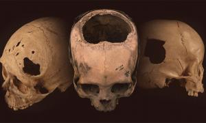 Ancient skulls bearing evidence of trephination - a telltale hole surgically cut into the cranium - found in Peru.             Source: University of Miami