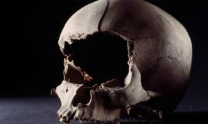 The skull of a man, 25-40 years, with his face cut off with a sharp weapon. The head was found in a well outside a pit house from the 9th century in Aarhus, Denmark. Source: Rogvi N. Johansen/Moesgaard Museum