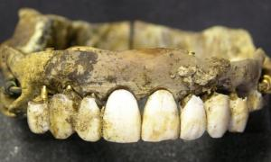 Many prosthetic dentures were composed of Waterloo Teeth .           Source: Museum of London Archaeology