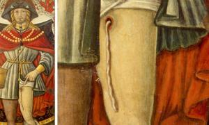 A painting of 14th century St. Roch shows the dracunculiasis worm exiting the upper part of his leg.
