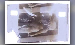 NFT Image from 1947 Alien Autopsy Film For Sale for $1 Million