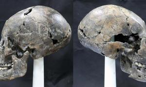 Bizarre Alien-Like Skull Unearthed in Korea was Naturally Formed