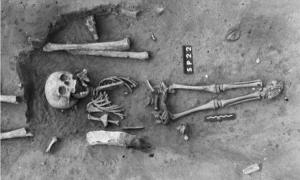 Ancient burial of a child with Down syndrome