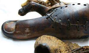 Ancient Prosthetics