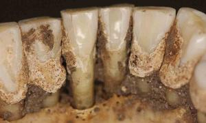 New study will help us understand more about ancient trippers by testing ancient teeth. Source: Line S. Larsen / Science