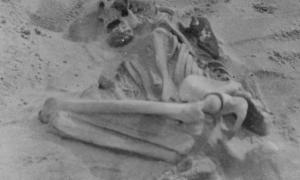 The bent and hunched bones of the woman with rickets. (Images by the journal Proceedings of the Prehistoric Society)