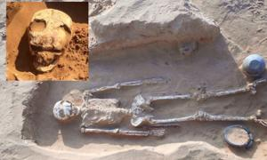 Burial Number 12 at Bogomolny, warrior with evidence of brain surgery by trepanning in skull. Inset, close up of trepanned skull