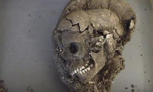 The child's skull after excavation; scientists hope to determine a lot about the person buried, such as diet, place of habitation, any diseases and cause and year of death.