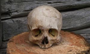 Human skulls have been found with evidence of craniotomy.