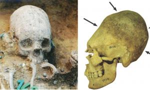 Left: Upper part of the body of grave 43 during excavation. The girl had an artificially deformed skull, was place in a grave with a side niche and richly equipped with a necklace, earrings, a comb and glass beads. The girl belonged to a group of people with a non-local origin and similar dietary habits, which appeared to have arrived at the site about 10 years after its establishment. (Wosinsky Mór Museum)         Right: Artificially deformed skull of an adult woman. Permanent binding during childhood caus