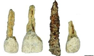 Dental implant in Iron Age burial chamber