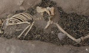 Disease in ancient Mesopotamia