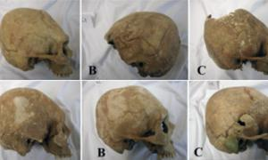 Elongated skulls in the Carpathian Basin
