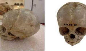 issected foetal skull dating from the 1800s, originally held in the University of Cambridge Anatomy Museum.