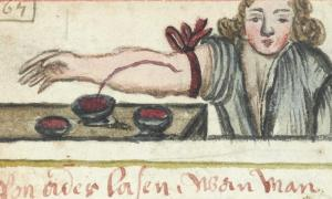 Bloodletting was treatment for infection in the past.