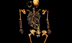Spinal of King Richard III