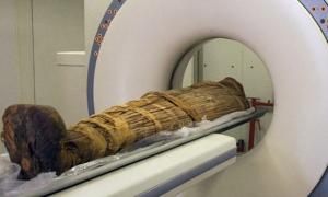 Hi-tech scans of ancient mummies from around the world show evidence of heart disease