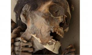 A mummy tested for arsenic poisoning.