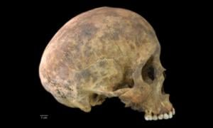 One of two cases of healed blows to the cranium from the Playa Venado excavations. 	Source: Nicole Smith-Guzmán, STRI