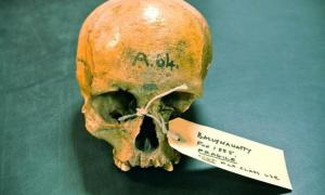 The skull of the Neolithic woman excavated in 1855 in Ballynahatty, Northern Ireland.