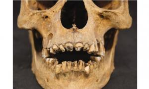 The teeth of a 17th dynasty (circa 1550 BC) mummy had his teeth broken out, probably during the embalming process. This mummy's wrappings were removed in the early 20th century.